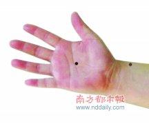 老年性心脏病患者不妨常按手掌劳宫穴位